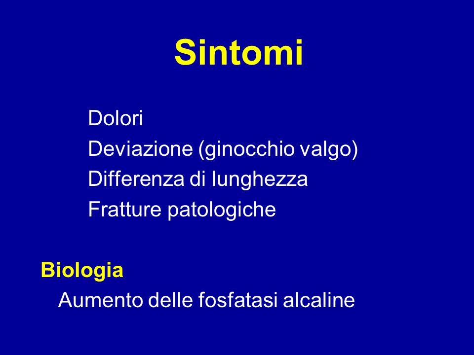 Sintomi Dolori Deviazione (ginocchio valgo) Differenza di lunghezza