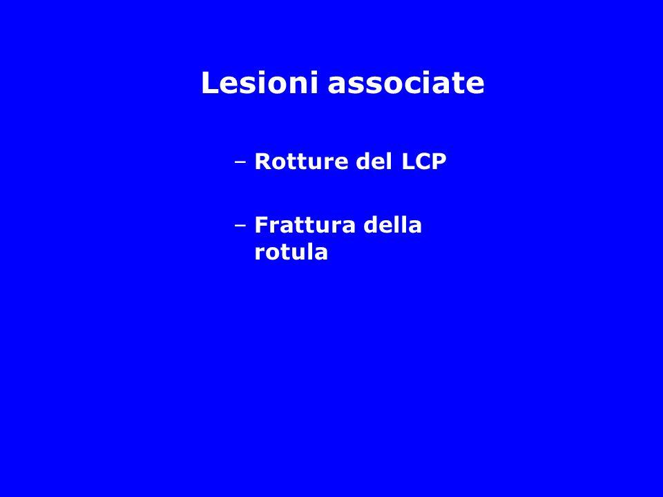 Lesioni associate Rotture del LCP Frattura della rotula