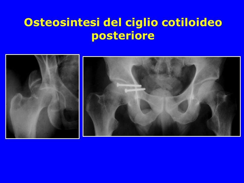 Osteosintesi del ciglio cotiloideo posteriore