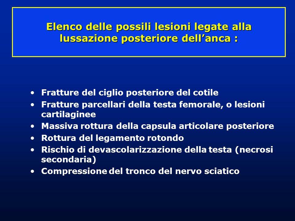 Elenco delle possili lesioni legate alla lussazione posteriore dell'anca :