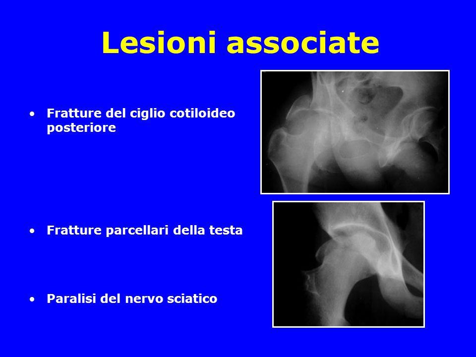 Lesioni associate Fratture del ciglio cotiloideo posteriore