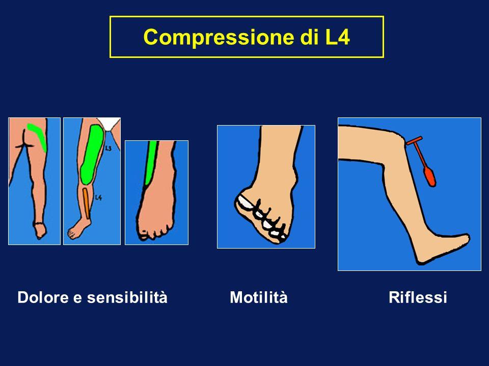 Compressione di L4 Dolore e sensibilità Motilità Riflessi