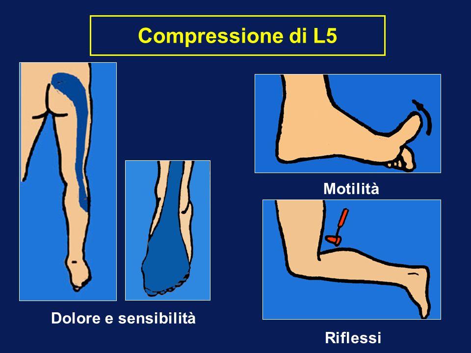 Compressione di L5 Motilità Dolore e sensibilità Riflessi