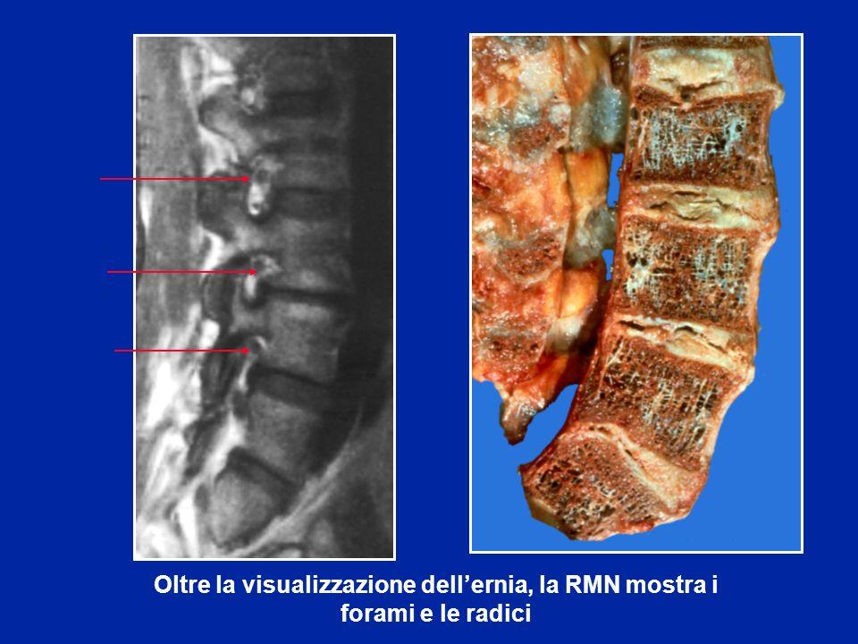 Oltre la visualizzazione dell'ernia, la RMN mostra i forami e le radici