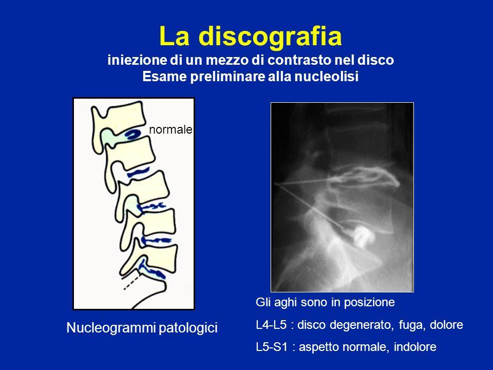 Nucleogrammi patologici