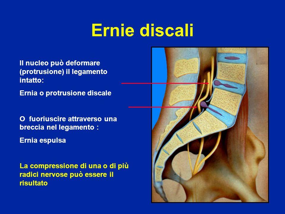 Ernie discali Il nucleo può deformare (protrusione) il legamento intatto: Ernia o protrusione discale.