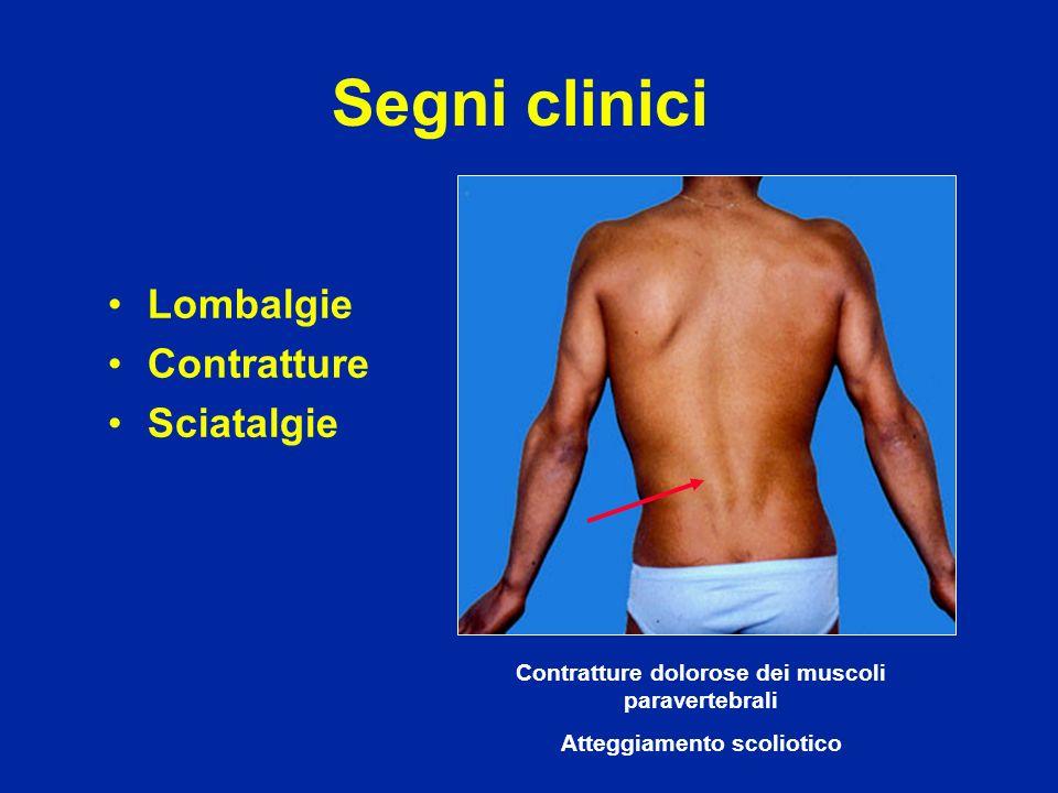Segni clinici Lombalgie Contratture Sciatalgie