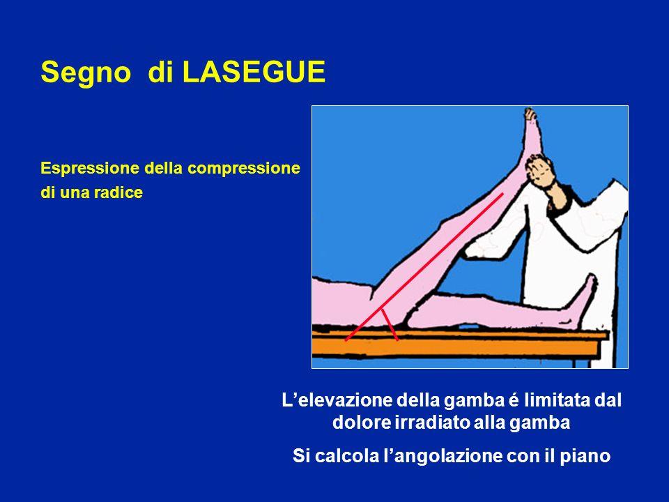 Segno di LASEGUE Espressione della compressione. di una radice. L'elevazione della gamba é limitata dal dolore irradiato alla gamba.