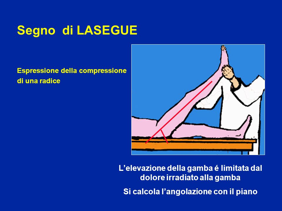 Segno di LASEGUEEspressione della compressione. di una radice. L'elevazione della gamba é limitata dal dolore irradiato alla gamba.
