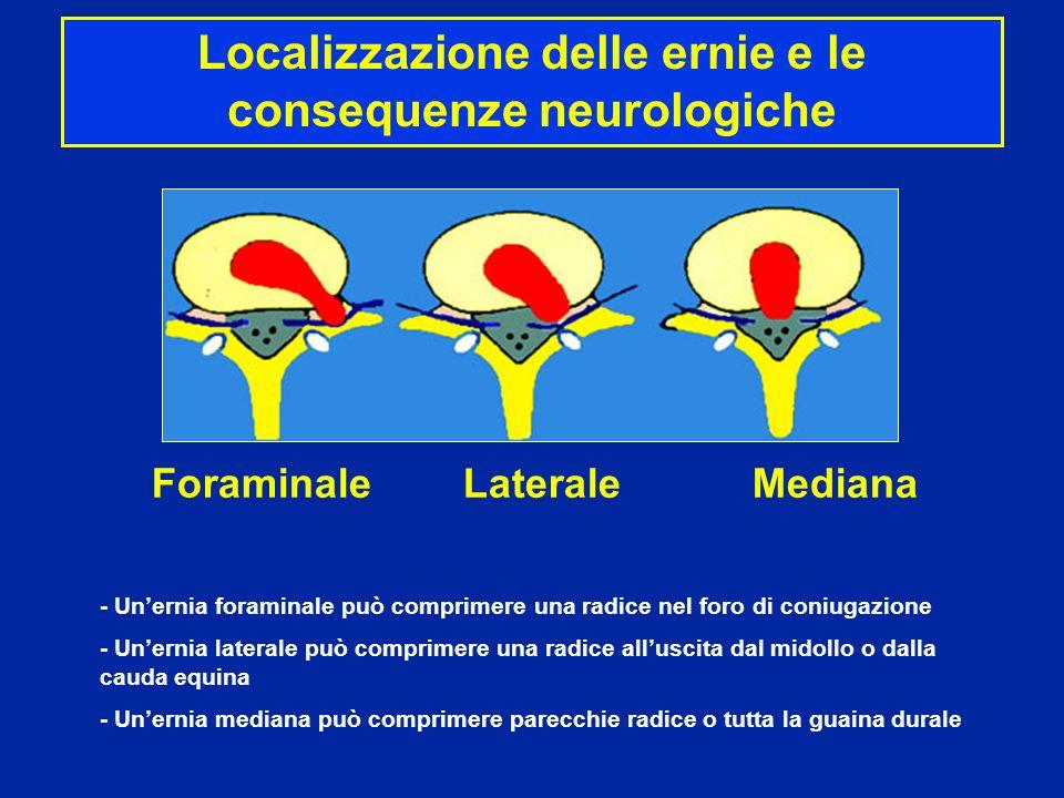 Localizzazione delle ernie e le consequenze neurologiche