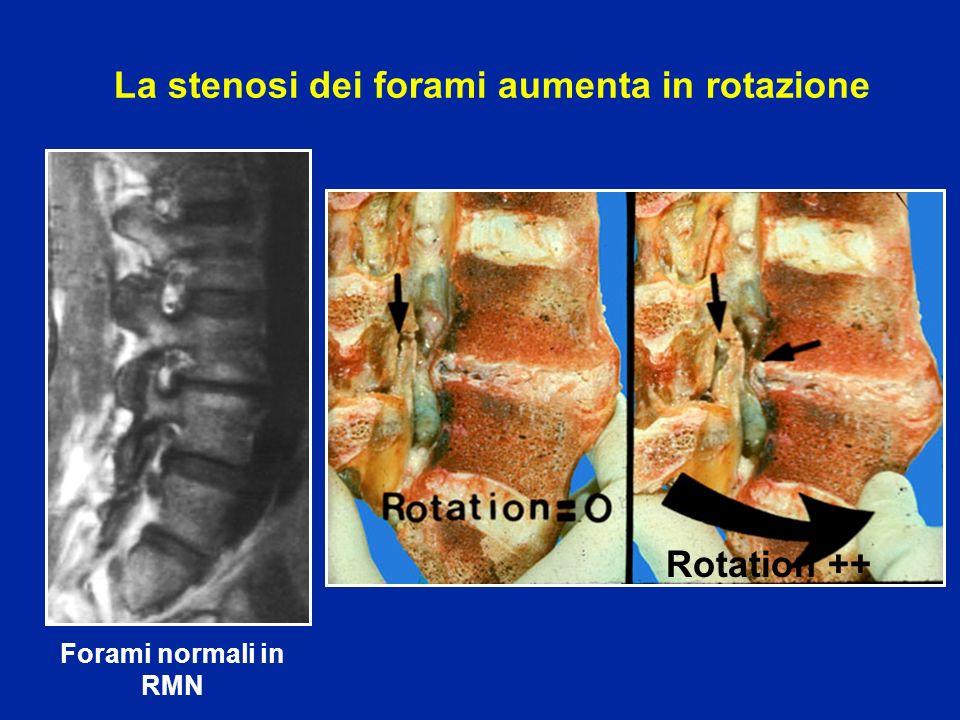 La stenosi dei forami aumenta in rotazione