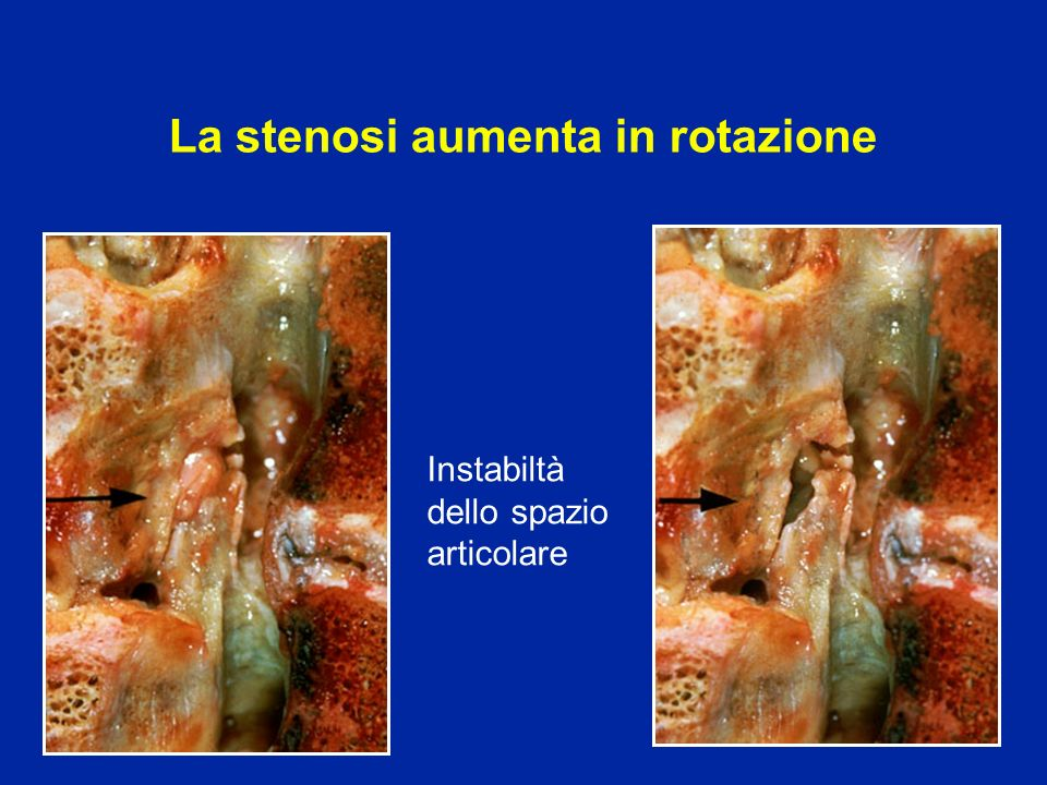 La stenosi aumenta in rotazione
