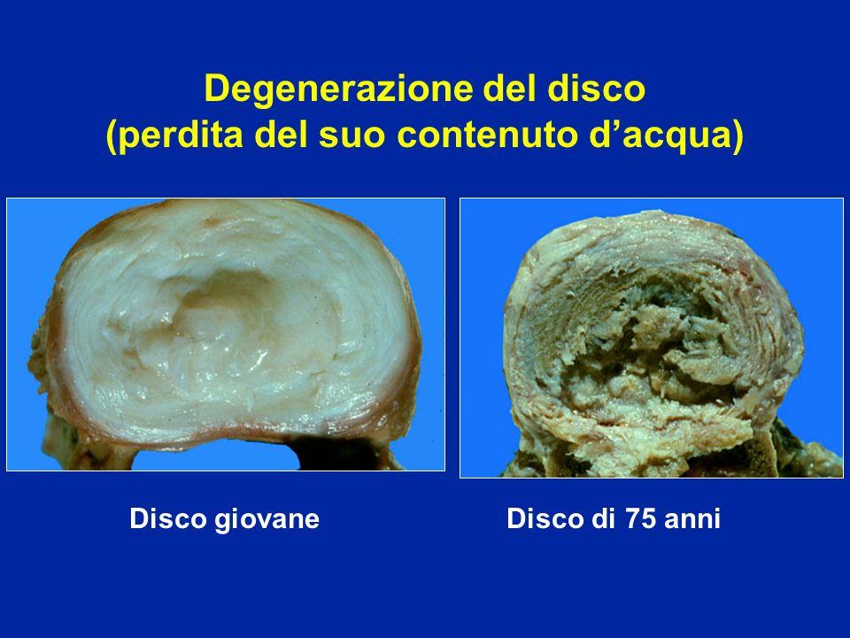 Degenerazione del disco (perdita del suo contenuto d'acqua)