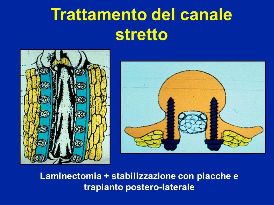 Trattamento del canale stretto