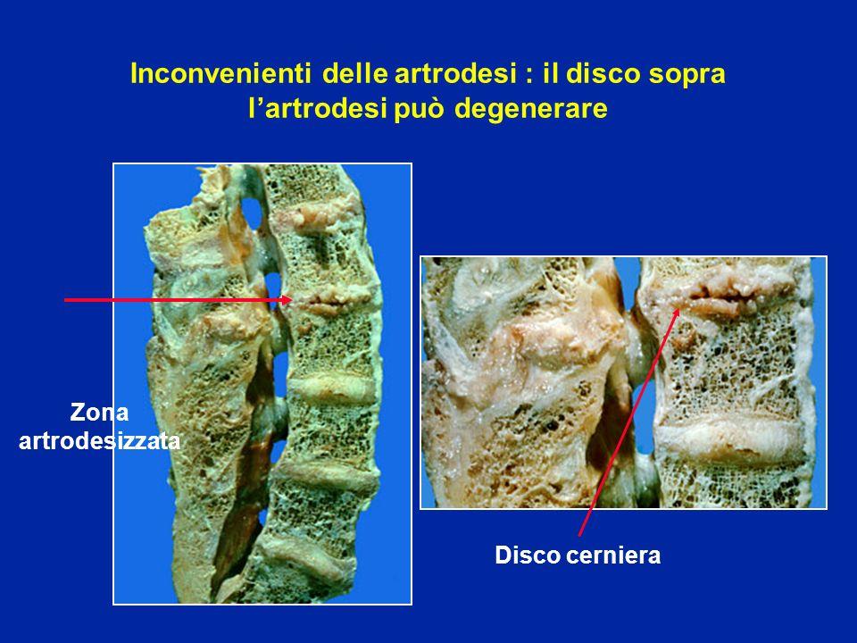 Inconvenienti delle artrodesi : il disco sopra l'artrodesi può degenerare