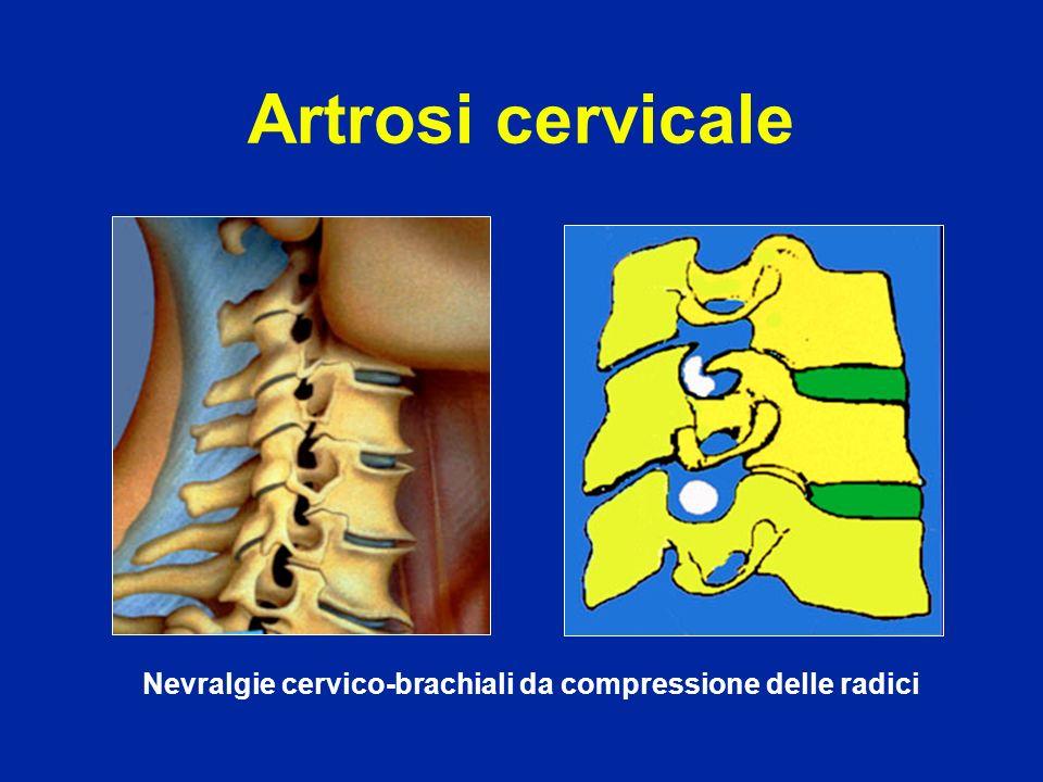 Nevralgie cervico-brachiali da compressione delle radici