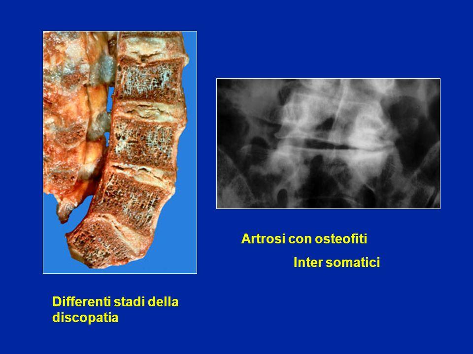 Artrosi con osteofiti Inter somatici Differenti stadi della discopatia