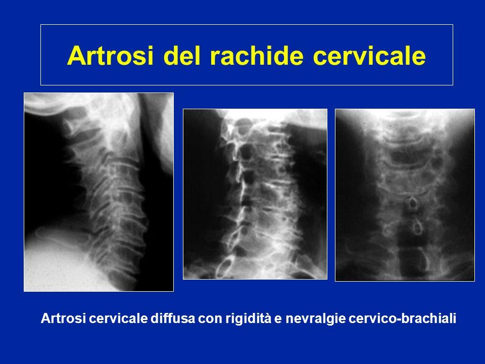 Artrosi del rachide cervicale