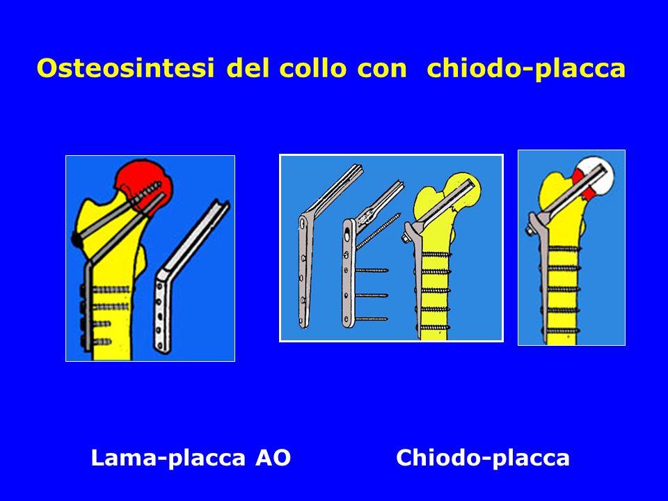 Osteosintesi del collo con chiodo-placca