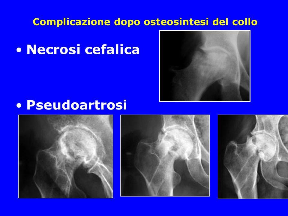 Complicazione dopo osteosintesi del collo