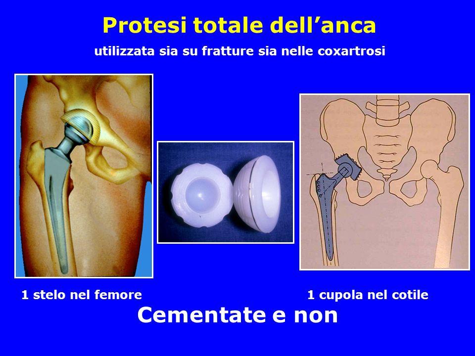Protesi totale dell'anca utilizzata sia su fratture sia nelle coxartrosi