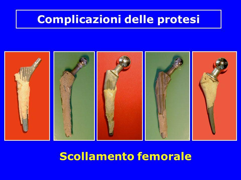 Complicazioni delle protesi