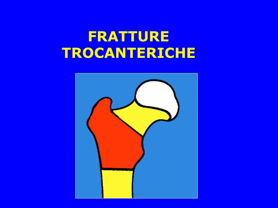 FRATTURE TROCANTERICHE