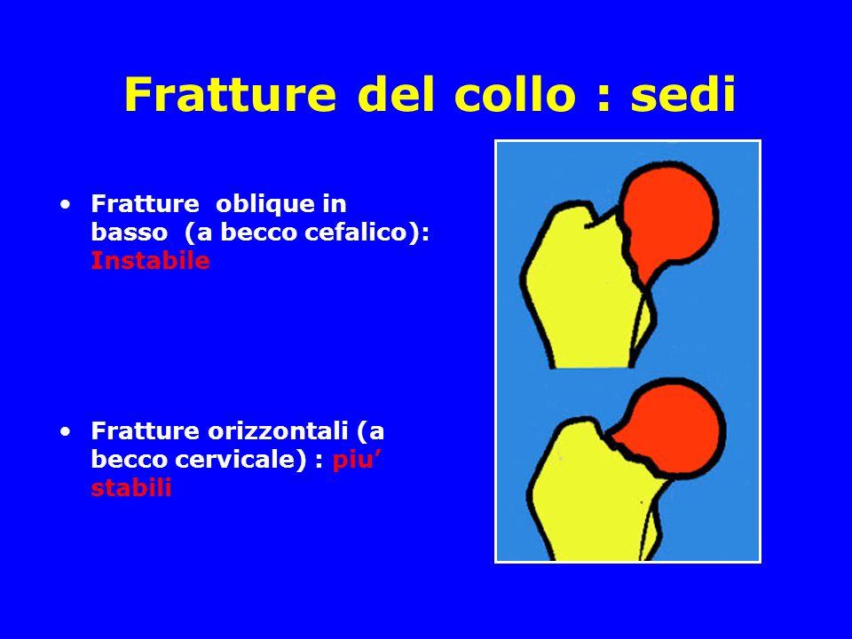 Fratture del collo : sedi
