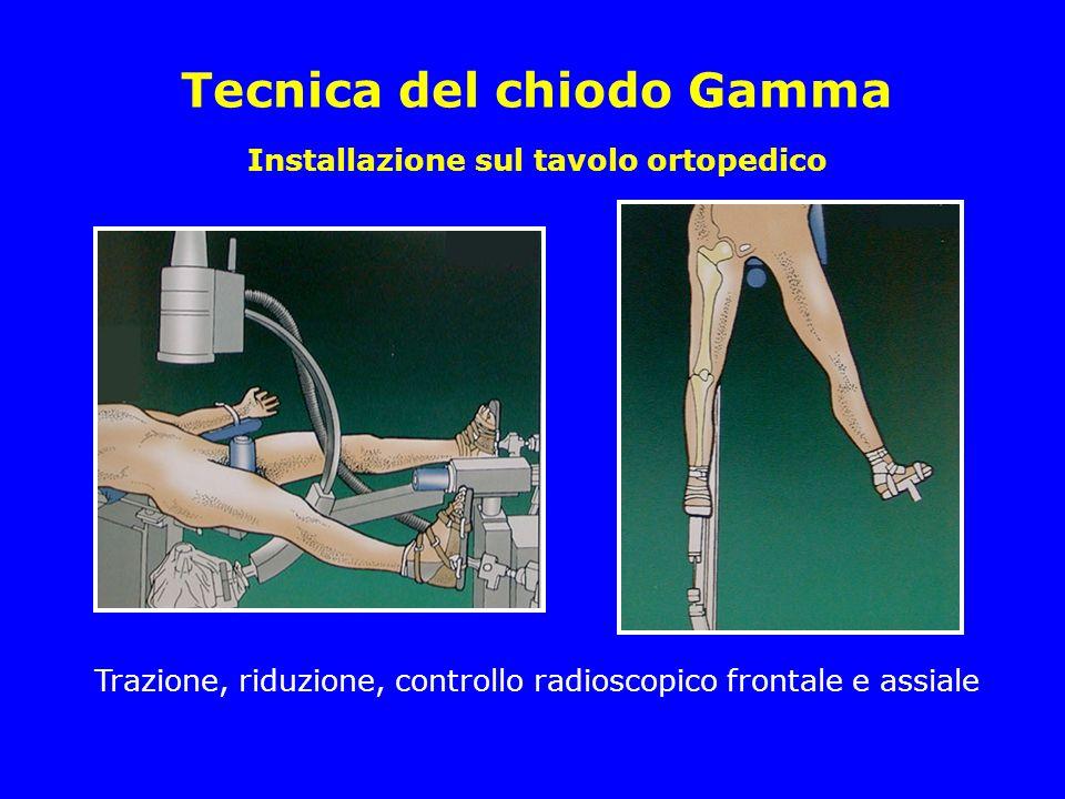 Installazione sul tavolo ortopedico