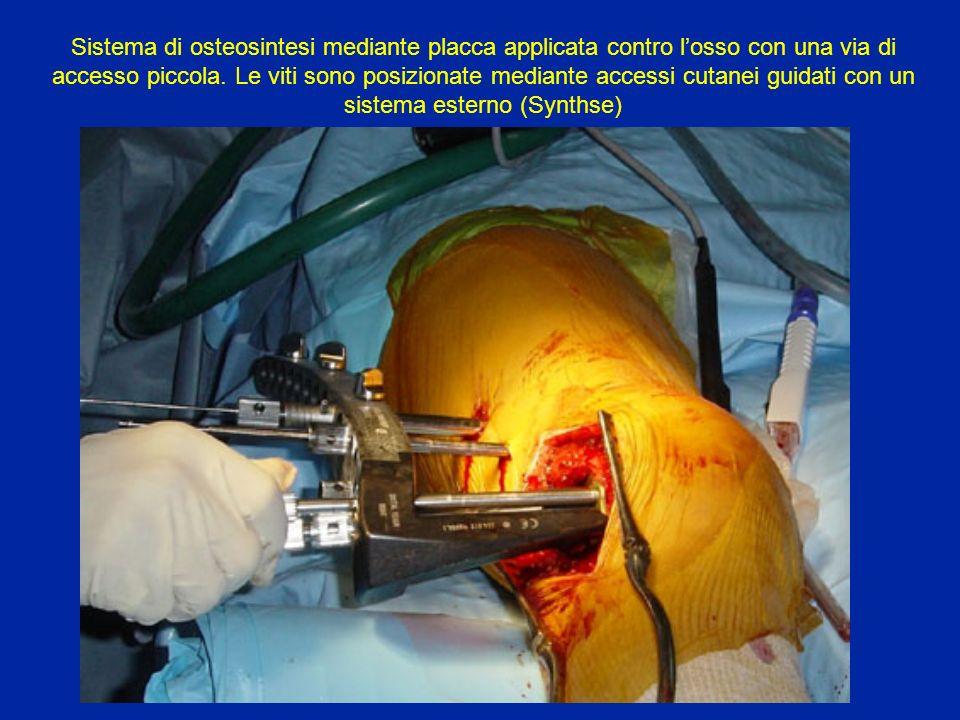 Sistema di osteosintesi mediante placca applicata contro l'osso con una via di accesso piccola.