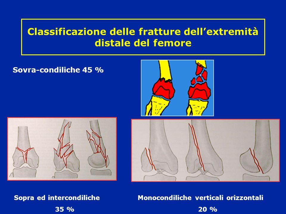 Classificazione delle fratture dell'extremità distale del femore