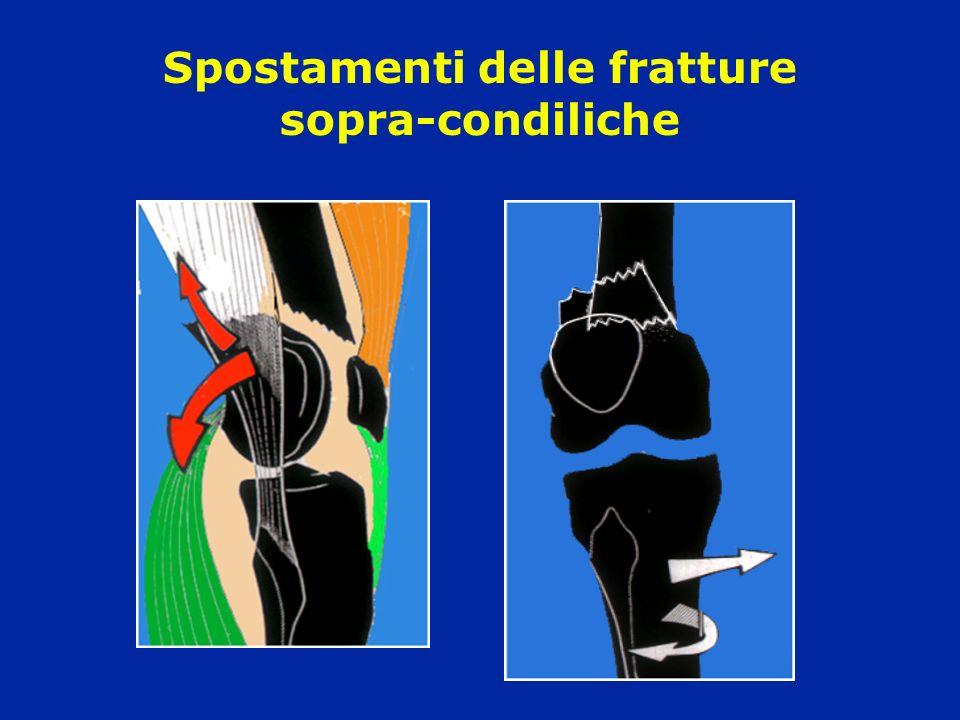 Spostamenti delle fratture sopra-condiliche