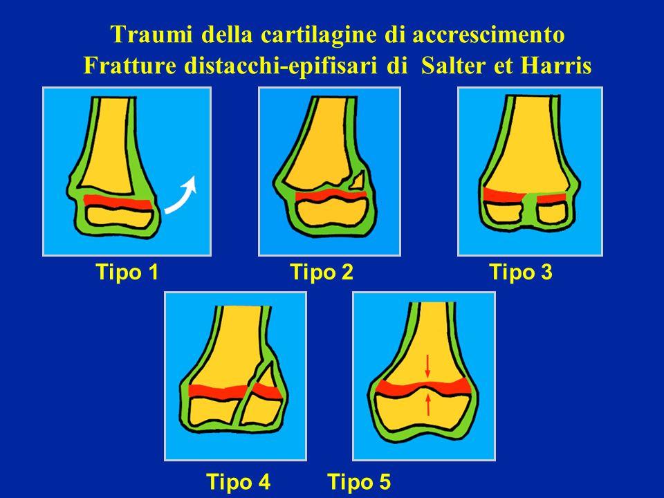 Traumi della cartilagine di accrescimento Fratture distacchi-epifisari di Salter et Harris