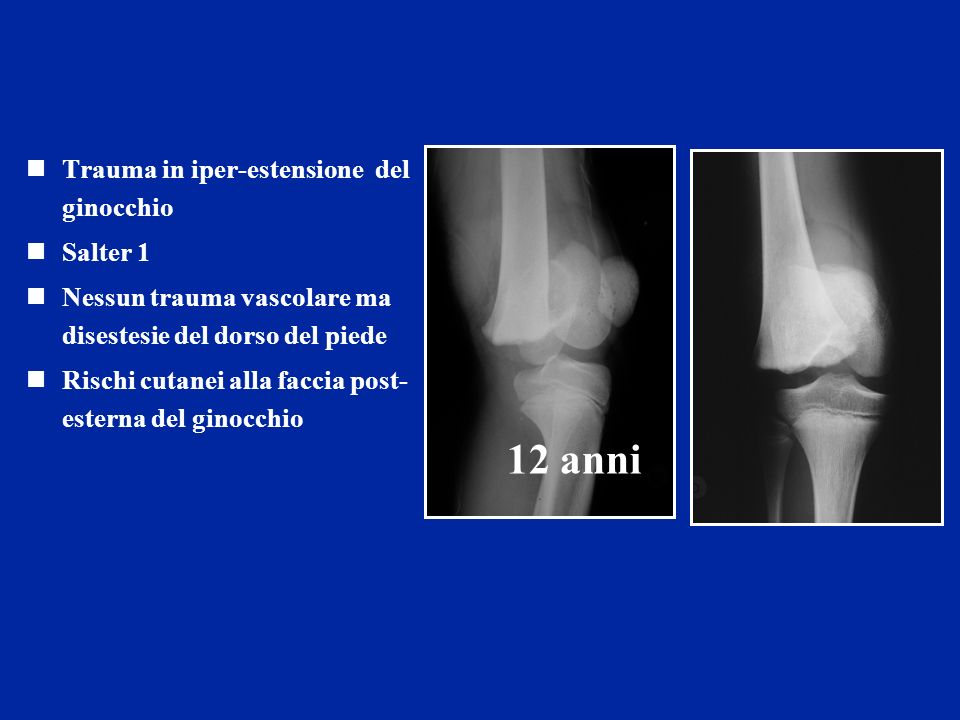 12 anni Trauma in iper-estensione del ginocchio Salter 1