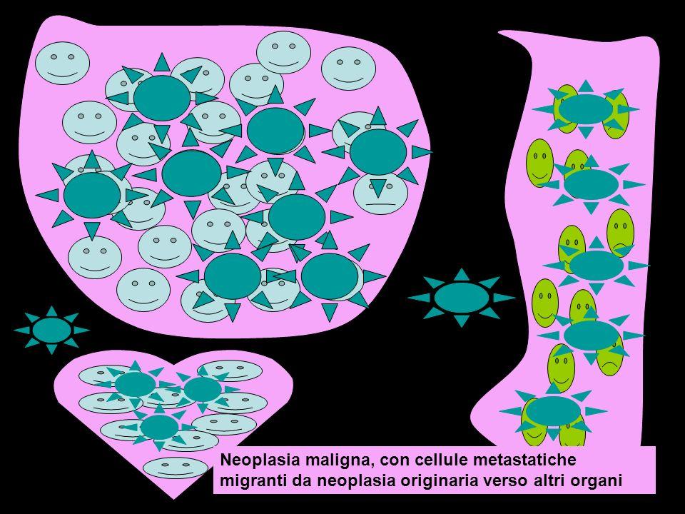 Neoplasia maligna, con cellule metastatiche migranti da neoplasia originaria verso altri organi