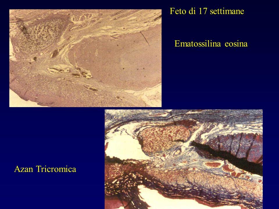 Feto di 17 settimane Ematossilina eosina Azan Tricromica