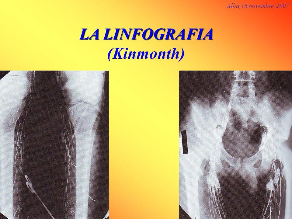 LA LINFOGRAFIA (Kinmonth)