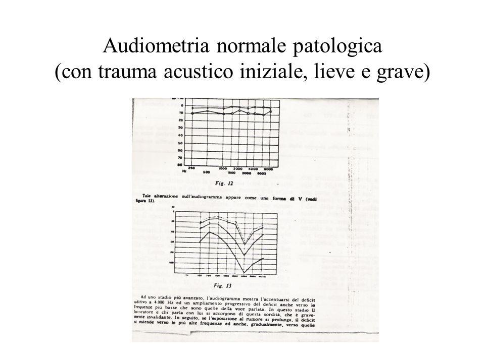 Audiometria normale patologica (con trauma acustico iniziale, lieve e grave)