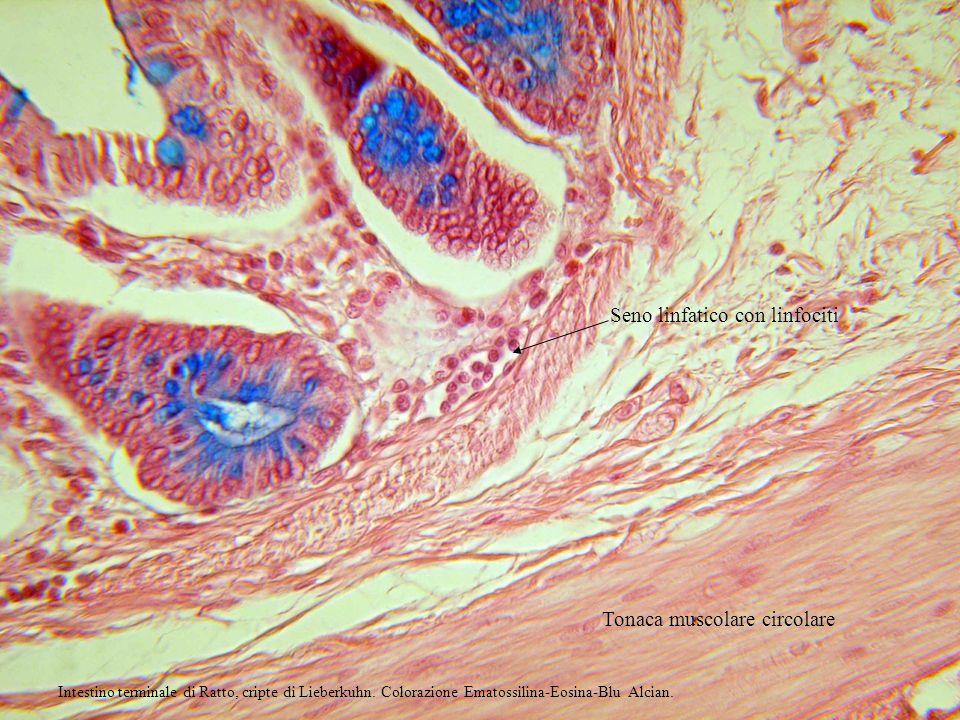 Seno linfatico con linfociti