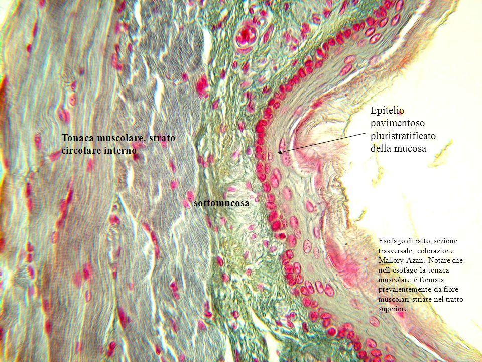 Epitelio pavimentoso pluristratificato della mucosa