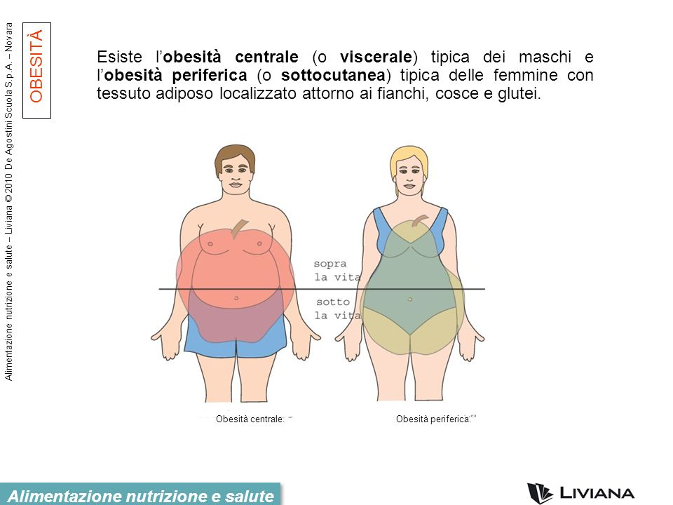 Esiste l'obesità centrale (o viscerale) tipica dei maschi e l'obesità periferica (o sottocutanea) tipica delle femmine con tessuto adiposo localizzato attorno ai fianchi, cosce e glutei.