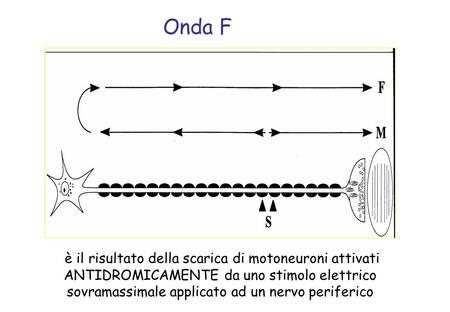 Onda F In a typical F wave study, a strong electrical stimulus is applied to the skin surface above the distal portion of a nerve so that the impulse travels.