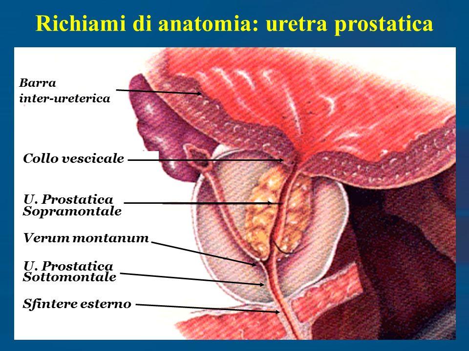 Endoscopia della prostata - ppt scaricare