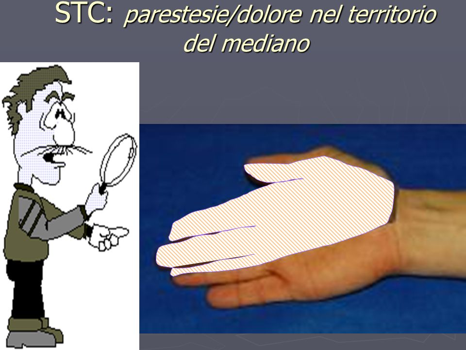 STC: parestesie/dolore nel territorio del mediano