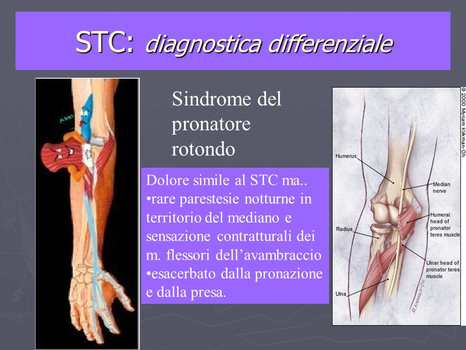 STC: diagnostica differenziale