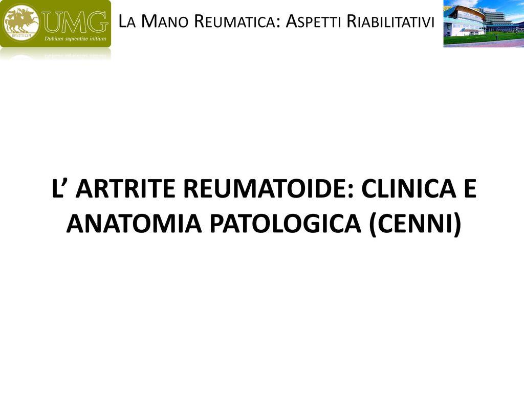 Sinovite: Descrizione, Sintomi, Cause e Diagnosi