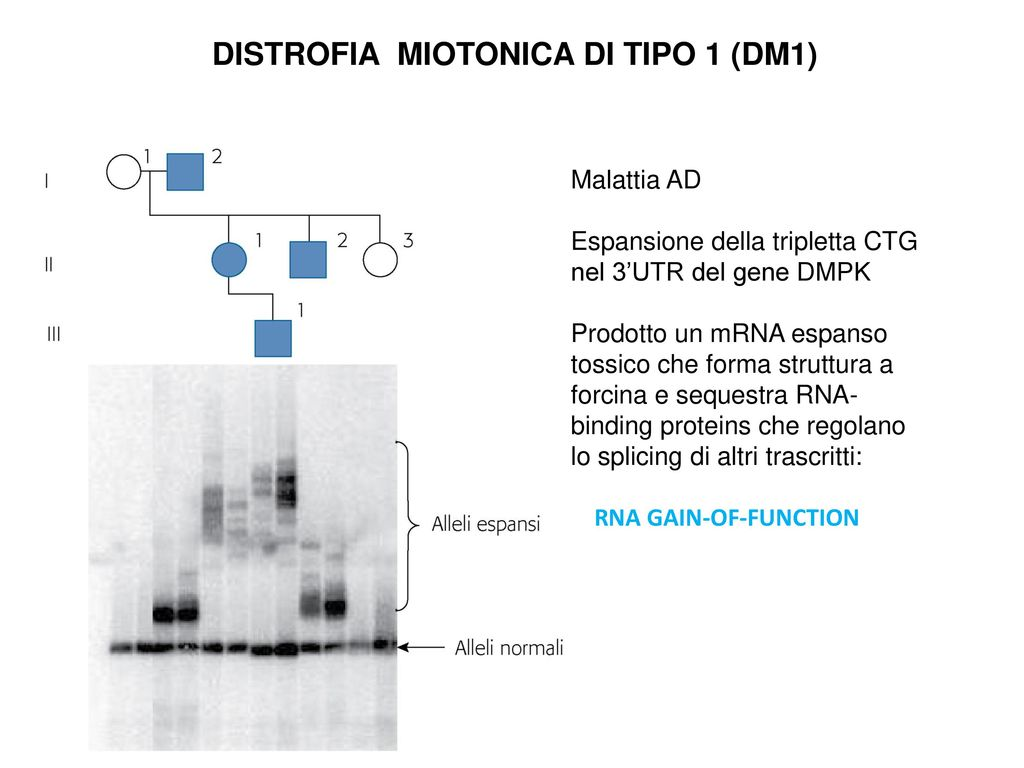 DISTROFIA MIOTONICA DI TIPO 1 (DM1)