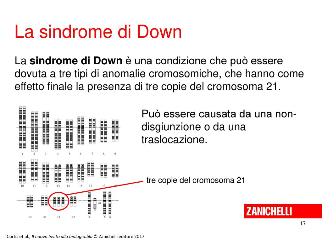 13/11/11 La sindrome di Down.
