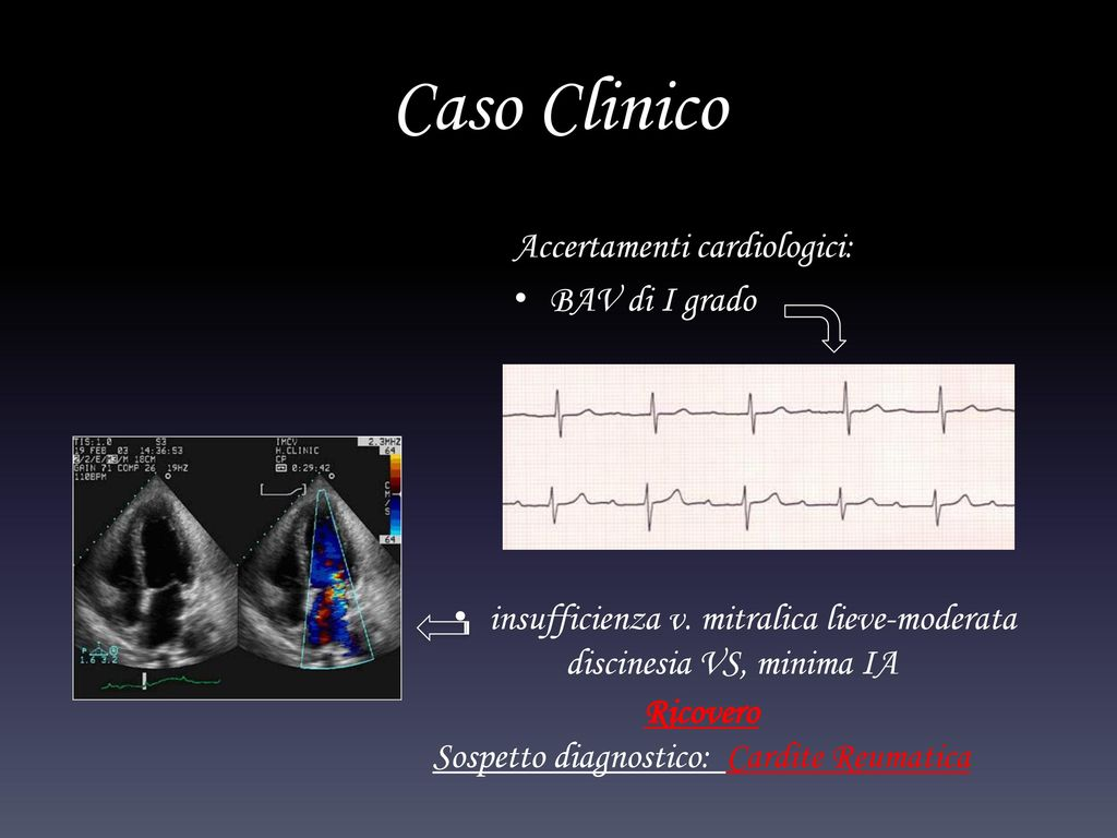 Sospetto diagnostico: Cardite Reumatica