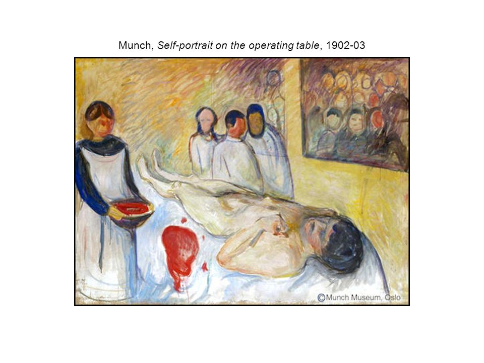 Munch, Self-portrait on the operating table,